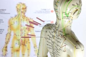 choosing an acupuncturist